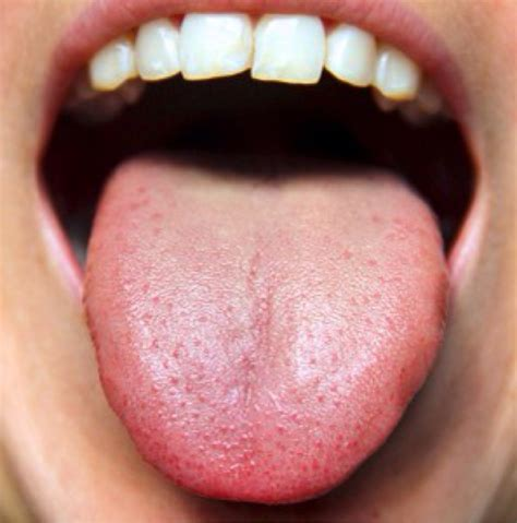 Collection White Coating On Tongue Pictures The Fashions