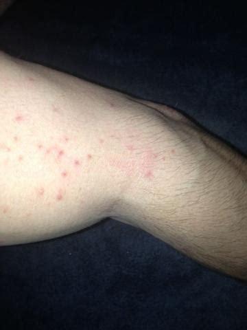 hautausschlag kein arzt kann mir helfen allergie