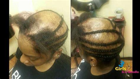 alopecia sew     girls   needle video