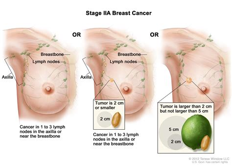 Breast Cancer Recurrence Symptoms Johny Fit