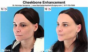 Related Keywords & Suggestions for sculptra cheekbones