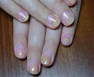 Пихтовое масло для лечения грибка ногтей
