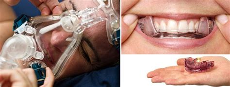 25+ Best Ideas About Sleep Apnea Mask On Pinterest