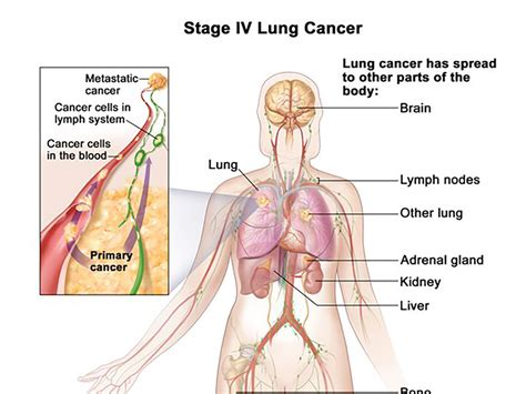 ohio state launches statewide lung cancer research