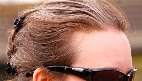 hair dye gallery blonde  strawberry