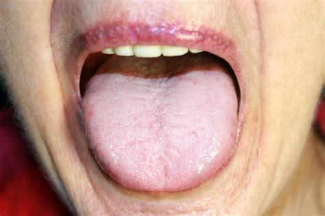 tongue white  symptoms treatment