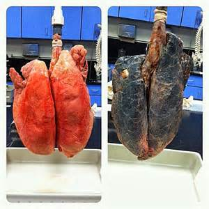 Smokers Lungs Vs. Healthy