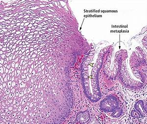 Jama On Twitter   U0026quot Biopsy Showing Intestinal Metaplasia W Characteristic Goblet Cells Confirms