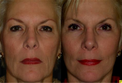 The Keys To An Excellent Facelift  The Plastic Surgery