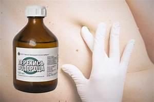 Перекись водорода лечение папиллом