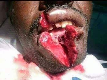 woman cuts  husbands lips  sending money
