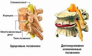 Лечение бородавок в запорожье