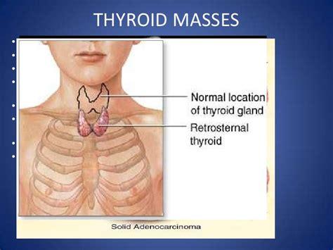 mediastinum thyroid disorders anatomy its retrosternal extension enlarged