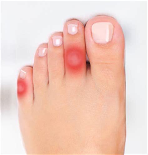Produit pour mycose des pieds