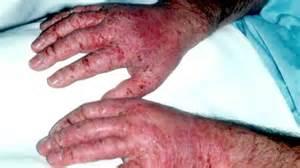 Occupational Skin Disease - YouTube Occupational Diseases