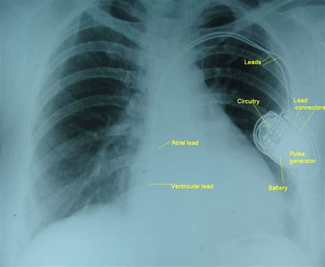 dual chamber pacemaker x ray chest pa cardiophile md