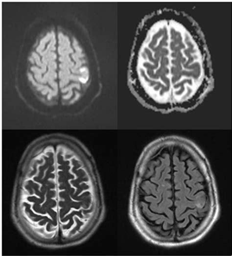 Hand Monoparesis Due to Small Cortical Ischemic Stroke ...