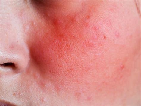 皮膚 が ピリピリ する
