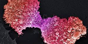 Pancreatic, Cancer, May, Become, No, 2, Cause, Of, Cancer, Deaths