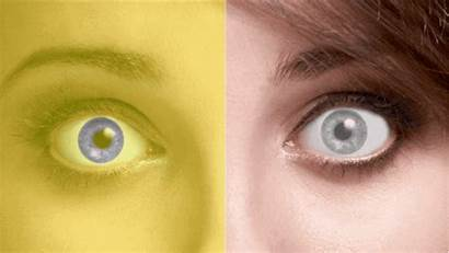 Eyes Different Colored Illusions Optical Question Everything