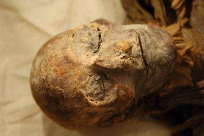 paziente disperso dopo loperazione trovato mummificato