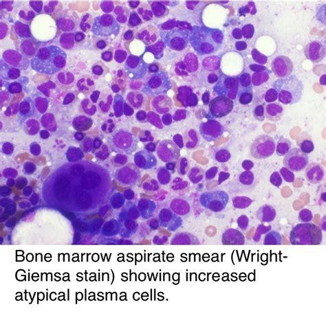 pathology outlines osteosclerotic myeloma poems syndrome
