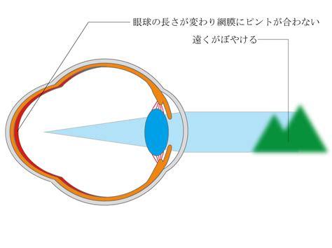 眼 圧 高い 原因