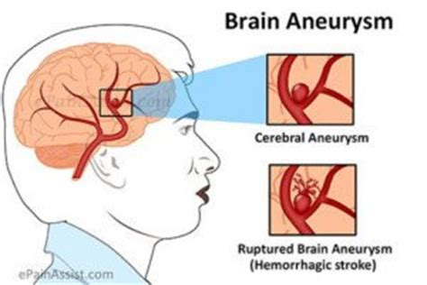 Making Brain Aneurysm Surgery Safer: No General Anesthesia