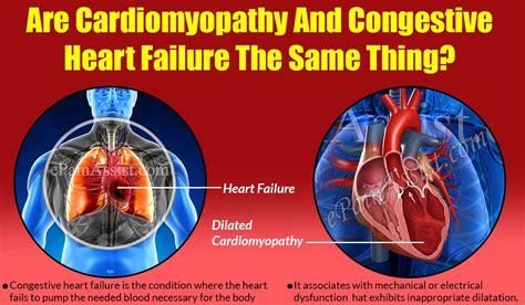 cardiomyopathy  congestive heart failure