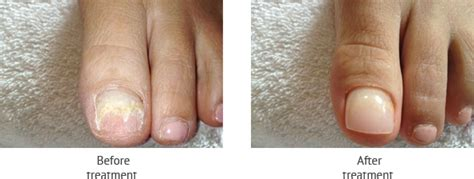 cosmetic nail repair superior foot ankle care center