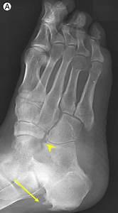 Ankylosing Spondylitis Of Peripheral Joints   A  B