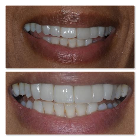 aesthetic tooth replacement denture  dental implant