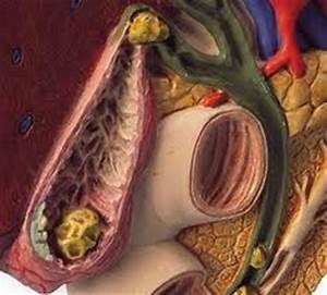 Symptomen hoge cholesterol waarde - Welkom