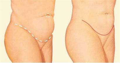 Tummy Tuck Convenient Deciding Upon Solutions