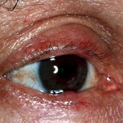 red eye painful sensitivity to light my eye is burning watering and sensitive to light