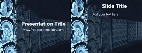 radiology  template  powerpoint templates