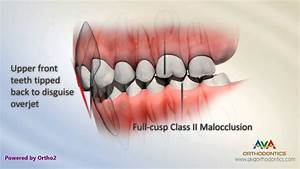 Tipped Back Front Teeth - Class Ii Div 2 Malocclusion