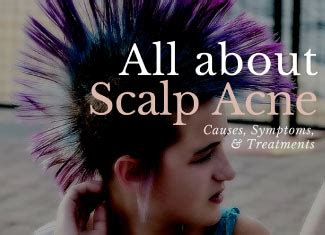 scalp acne top  treatments    today caa