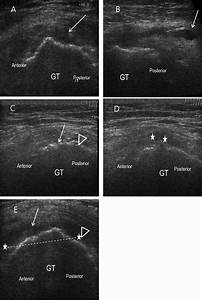 Ultrasound Finding In Greater Trochanter Pain Syndrome  A