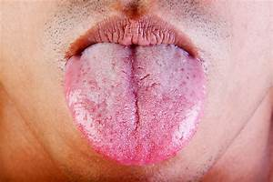 Obesity Robs The Tongue Of Taste Buds  Study Says