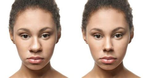 tricks    nose  thinner  surgery thehealthsitecom