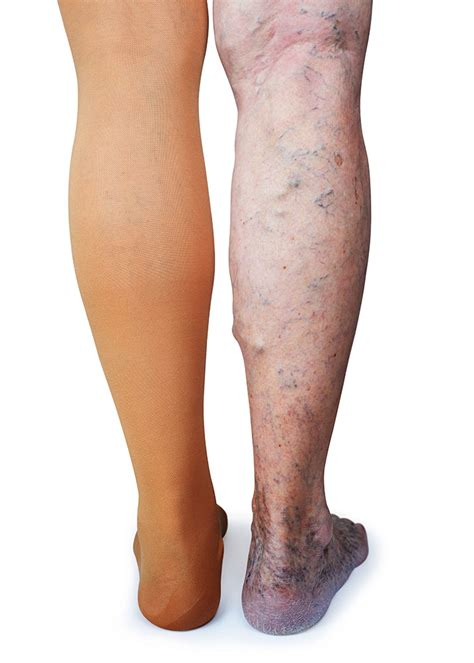 Choose the Right Compression Stocking for Your Health