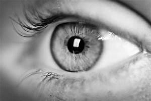 Nic's black and white eye | Beyond Auto