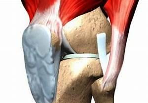 После метипреда болят суставы