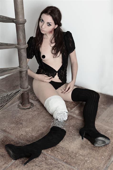 Broken Leg By Shivabel On Deviantart