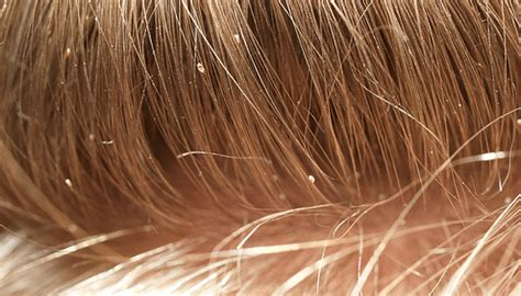 what color are nits when they are dead 5 treatments for how to get rid of lice kiwi families
