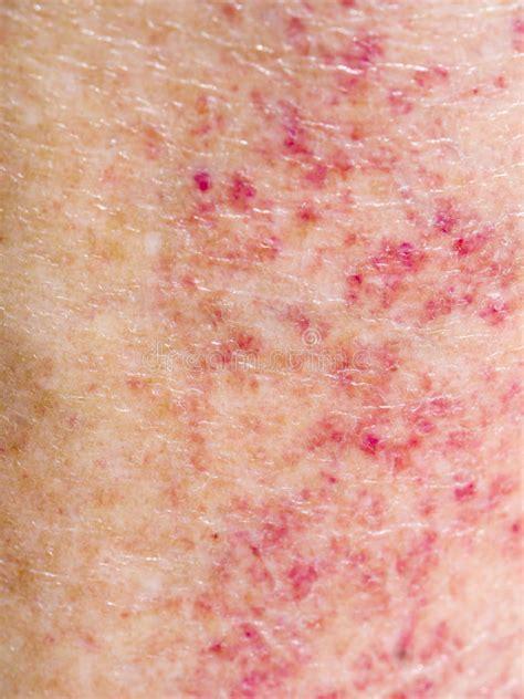 sun negative reaktion allergie roter hautausschlag auf