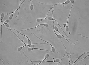 Pig Sperm Morphology