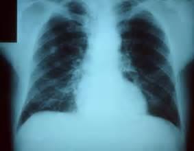 Scientists target bacterial sharing of antibiotic-resistance genes ... Pneumonia