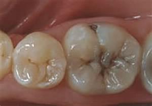 Services / Fissure Sealants | Brisbane Prosthodontics